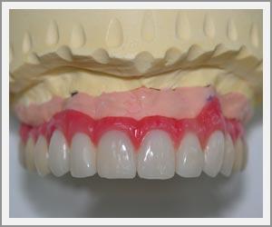 laboratoire-dentec-prothese-implants07