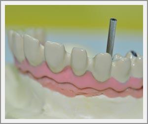 laboratoire-dentec-prothese-implants12