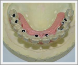 laboratoire-dentec-prothese-implants13