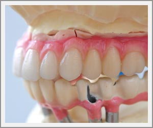 laboratoire-dentec-prothese-implants15