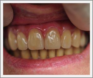 laboratoire-dentec-prothese-implants-cas02